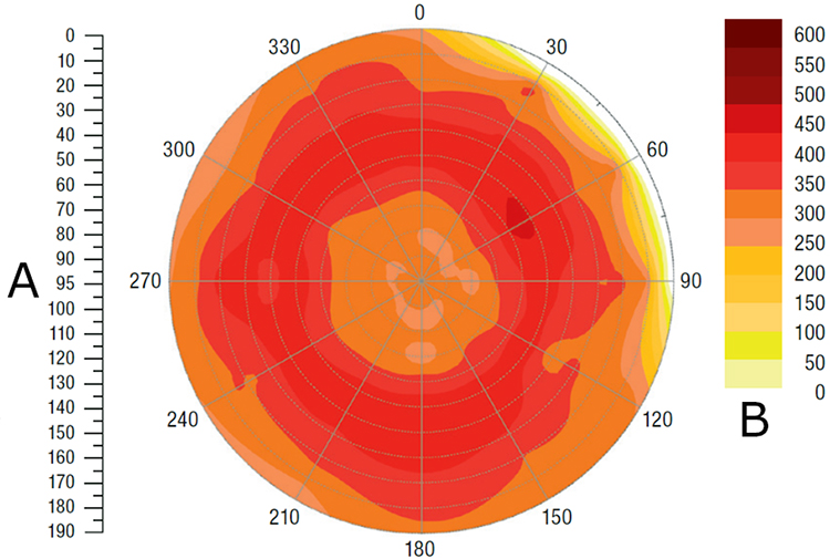 A représente le diamètre de la balle (cm) symétrique sur l'axe degré 0, et B représente la densité de la balle (kg/m<sup>3</sup>)