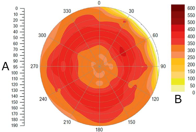 A visar baldiameter (cm) symmetriskt över 0-gradersaxeln, och B visar baltäthet (kg/m<sup>3</sup>)